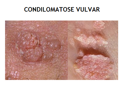 Vaginal Warts On Labia HPV - Dr. Eduardo Dale...